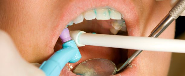 dental cleaning in los angeles