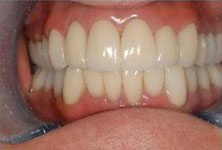 teeth-whitening-after-sm